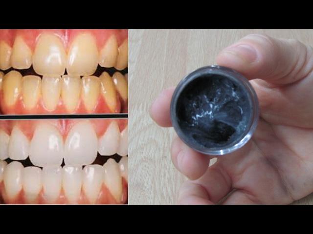 Como Clarear Os Dentes Em Casa Facil E Barato